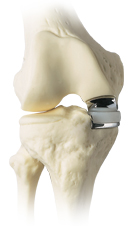 An implanted unicompartmental knee replacement