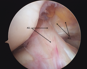 Arthroscopic photograph of normal cruciate ligaments