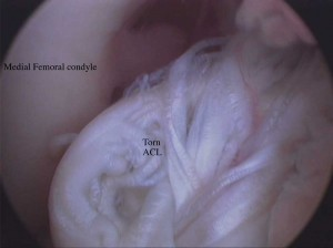 Arthroscopic view of a torn (ruptured) ACL