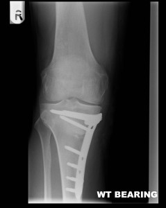 High tibial osteotomy healing after stabilisation with a plate