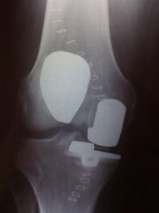 X-ray of a bicompartmental knee replacement